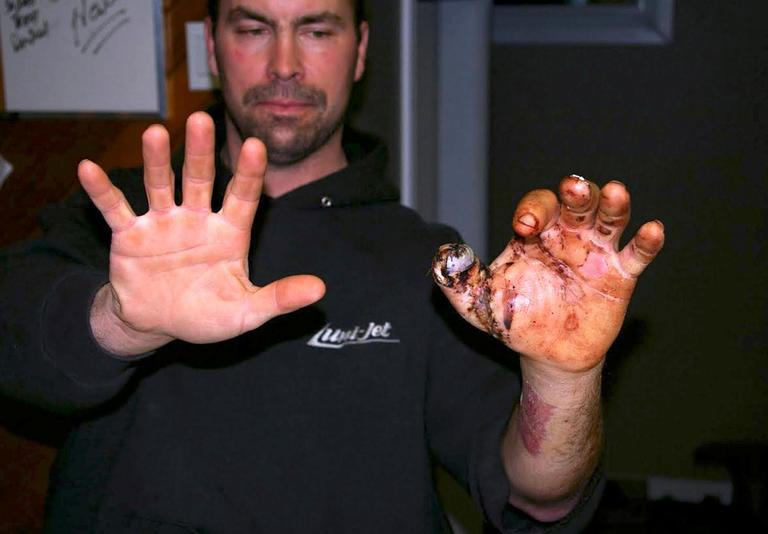 This 2010 photo provided by Trent Procter shows Procter, of Swan River, Manitoba, during rehabilitation, months after his Savage Arms stainless steel 10ML-II muzzleloader exploded and severely injured his left hand. Savage Arms recently agreed to pay a confidential settlement to Procter to resolve his lawsuit, one of several that allege the company kept a defective firearm on the market.  (Gordon Harris/Trent Procter via AP)