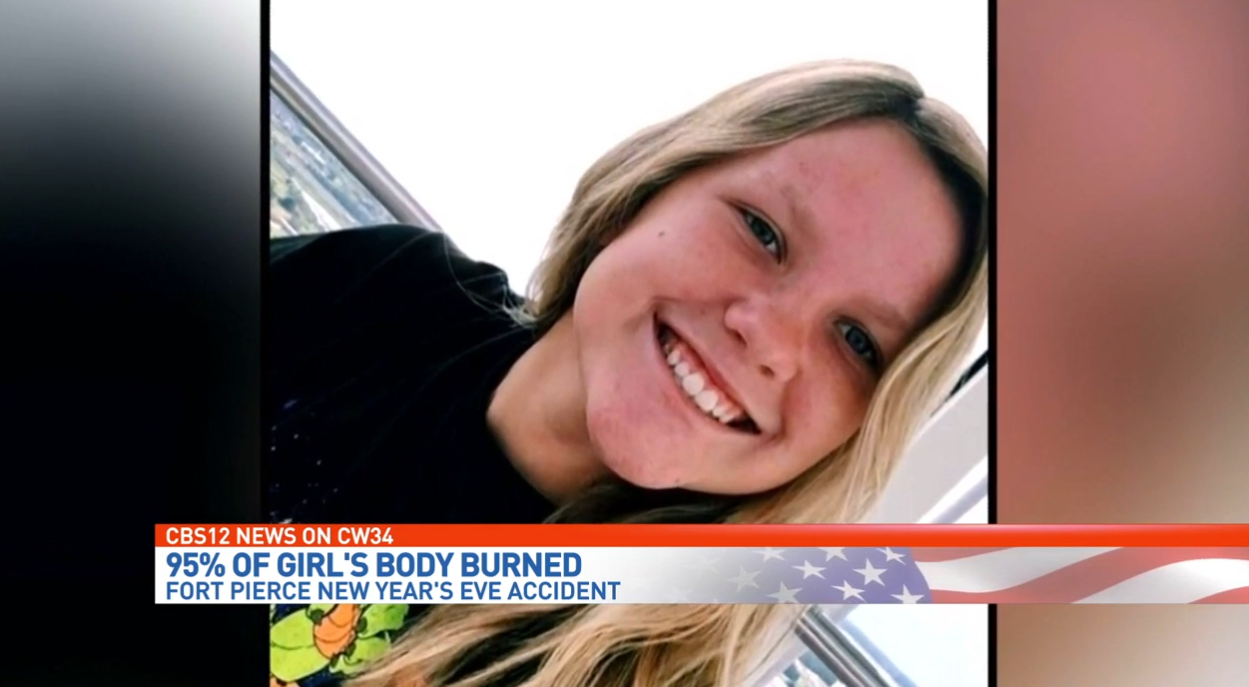 Teenage girl severely burned, fighting for life. (WPEC)<p></p>