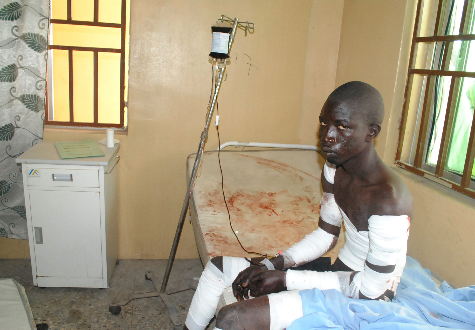 A victim of a Boko  Haram attack receives treatment at a hospital, in Maiduguri, Nigeria Monday, Dec. 28, 2015. Boko Haram Islamic extremists struck the northeastern Nigerian city of Maiduguri for the first time in months Monday with rocket-propelled grenades and multiple suicide bombers, witnesses said. At least 50 people were killed and the death toll could go higher. (AP Photo/Jossy Ola)