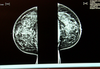P-BREAST CANCER SURGERY_frame_908.png