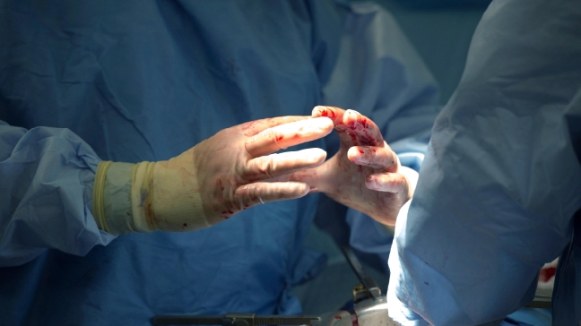 Surgeons rude to patients may pose problem in OR, study says