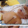 San Benito baby diagnosed with rare birth defect