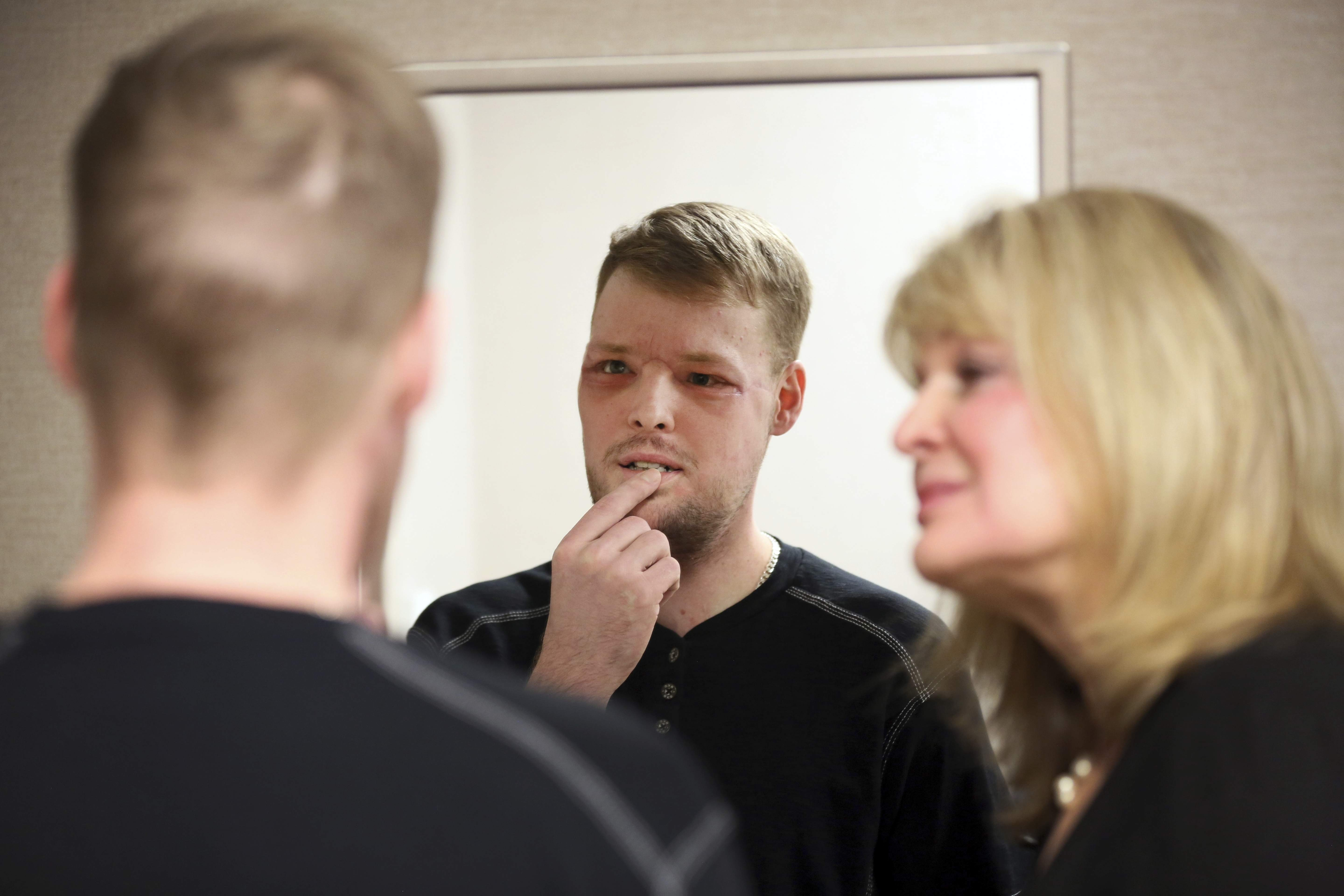 In this Jan. 24, 2017, photo, face transplant recipient Andy Sandness looks in a mirror during an appointment with physical therapist Helga Smars, right, at Mayo Clinic in Rochester, Minn. He wasn't allowed to see himself immediately after the surgery. His room mirror and cell phone were removed. When he finally did see his face after three weeks, he was overwhelmed. 'Once you lose something that you've had forever, you know what it's like not to have it. ... And once you get a second chance to have it back, you never forget it.' Just having a nose and mouth are blessings, Sandness says. 'The looks are a bonus.' THE ASSOCIATED PRESS