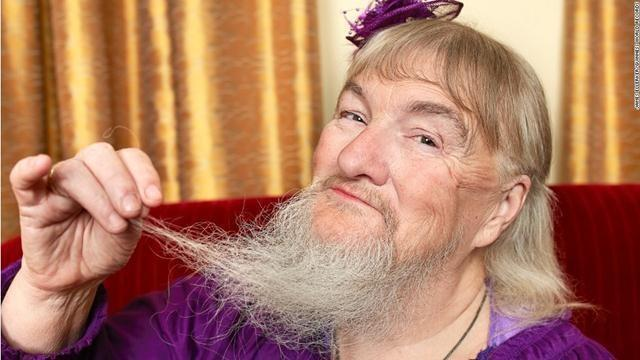The longest beard on a woman, belongs to Vivian Wheeler from the U.S. The beard was measured at 10.04 inches (25.5 centimeters) from the follicle to the tip of hair on April 8, 2011.
