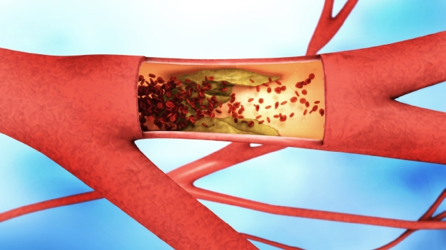 Treating Arterial Disease by Huey McDaniel, MD