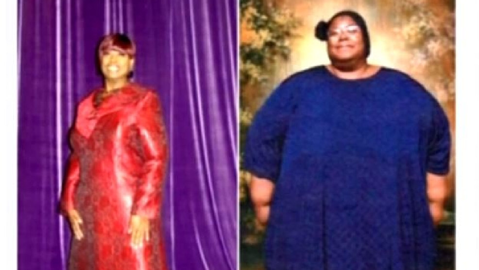 Celebrating weight loss with a fashion show